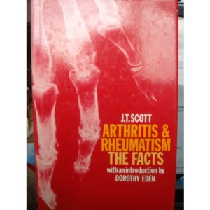Arthritis and Rheumatism: The Facts