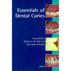 Essentials of Dental Caries: The Disease and Its Management (Oxford medical publications)