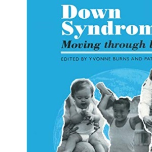 Down Syndrome: Moving Through Life