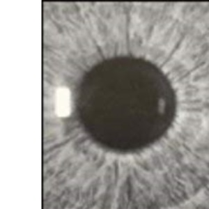 Ophthalmology (Concise Medicine Textbooks)