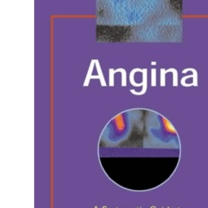 Angina: A Systematic Guide to Investigation and Treatment