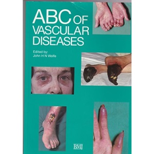 ABC of Vascular Diseases (ABC Series)
