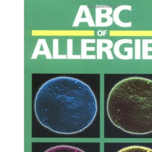ABC of Allergies (ABC Series)