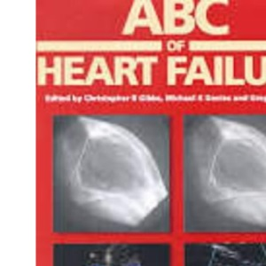 ABC of Heart Failure (ABC Series)