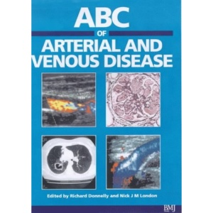 ABC of Arterial and Venous Disease (ABC Series)