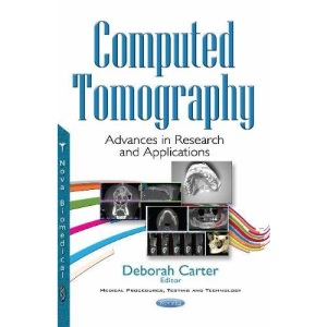 Computed Tomography: Advances in Research & Applications (Medical Procedures Testing Tec)