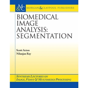 Biomedical Image Analysis: Segmentation (Synthesis Lectures on Image, Video, and Multimedia Processing)