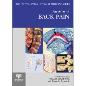 An Atlas of Back Pain (Encyclopedia of Visual Medicine Series)