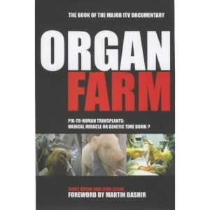 The Organ Farm: Pig to Human Transplants - Modern Miracle or Genetic Time Bomb?