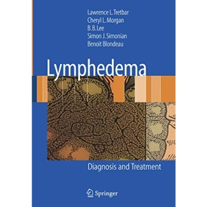 Lymphedema: Diagnosis and Treatment