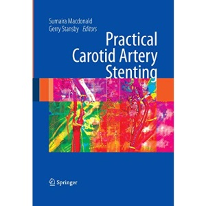Practical Carotid Artery Stenting: A Practical Guide