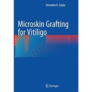 Microskin Grafting for Vitiligo