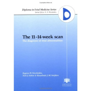 The 11-14-Week Scan: The Diagnosis of Fetal Abnormalities (Diploma in Fetal Medicine)