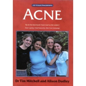Acne: The at Your Fingertips Guide