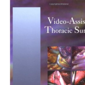 Video-Assisted Thoracic Surgery