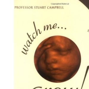 Watch Me Grow! A Unique, 3-Dimensional Week-by-Week Look at Your Baby's Behaviour and Development in the Womb