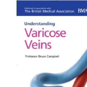 Varicose Veins (Understanding)