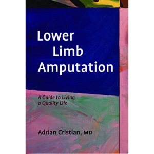 Lower Limb Amputation: A Guide to Living a Quality Life