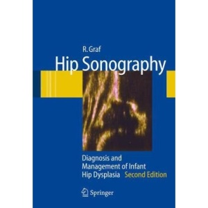 Hip Sonography: Diagnosis and Management of Infant Hip Dysplasia